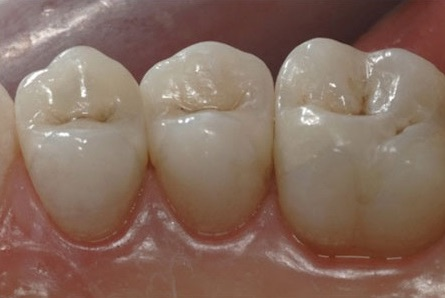 Amalgam to Composite